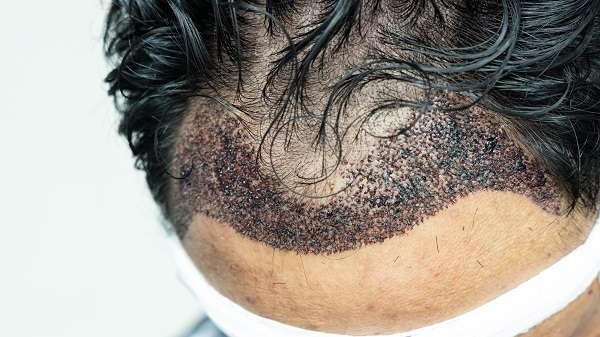 What is an infected hair transplant